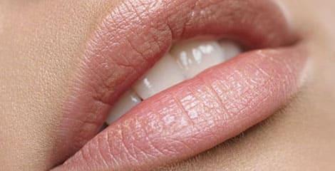 Хейлопластика (пластика губ)